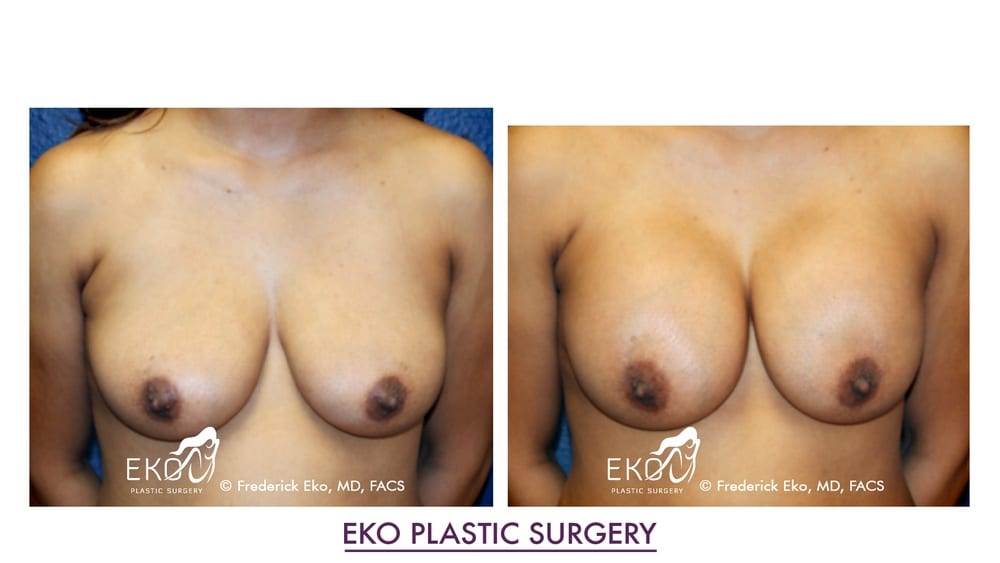 Breast-Augmentation-©-Frederick-Eko-MD-FACS-042